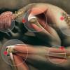 PAIN SERIES PART 1: UNDERSTANDING CHRONIC PAIN