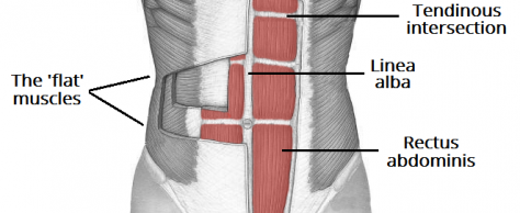 "Getting to the ""CORE"" of the Abdominal Wall Post Surgery"