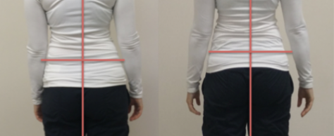 Part 2: Post Event Recovery Using Fascial Stretch Therapy